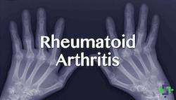 MMJ vs Rheumatoid Arthritis
