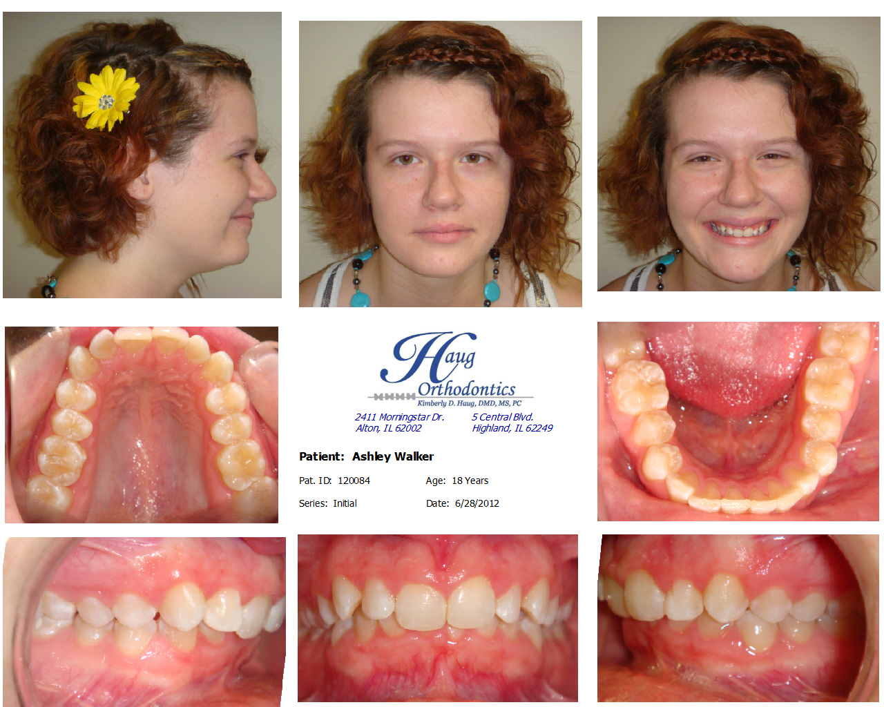 how to fix overbite with braces