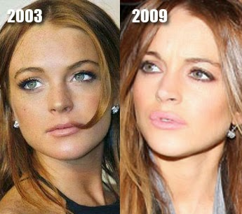 Amazing Plastic Surgery