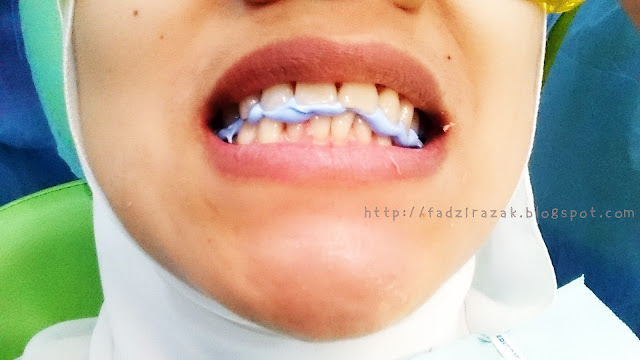 Mould invisalign