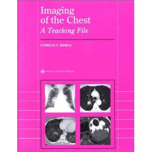 Imaging of the Chest: A Teaching File PDF