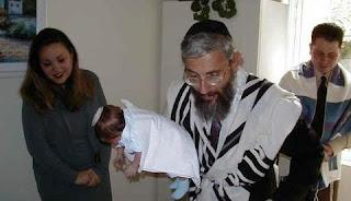 Sunat Ala Yahudi Sebabkan Herpes pada Bayi di AS