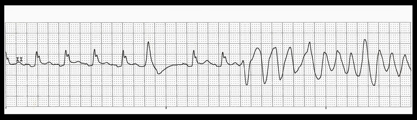 Normal sinus rhythm changing to polymorphic ventricular tachycardia