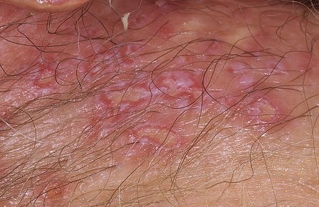 reveal first sign of genital herpes on man