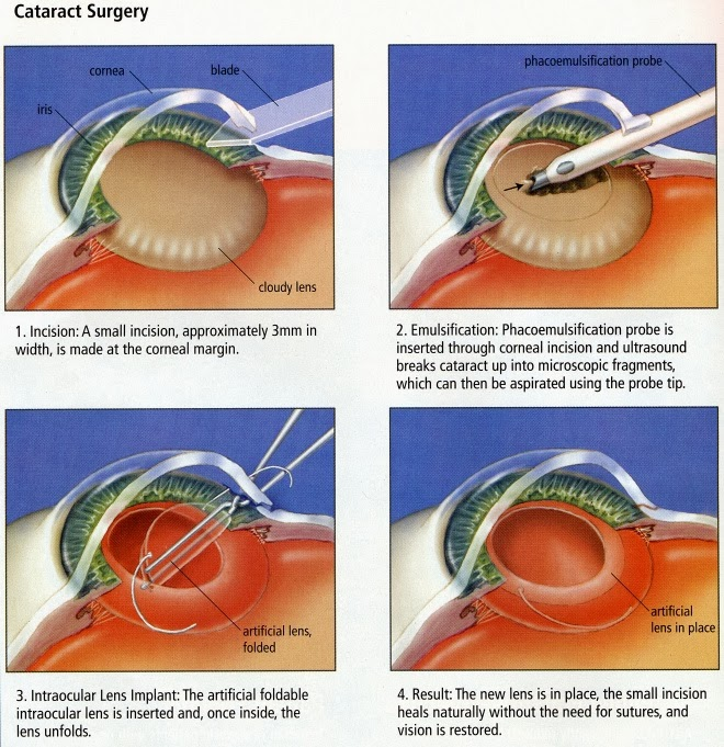 http://www.krishnaeyecentre.com/cataract-services.php