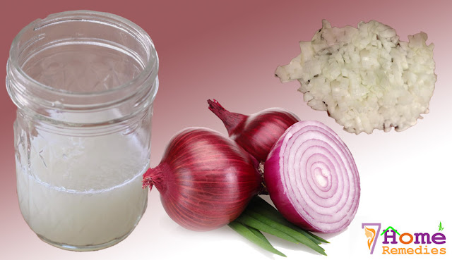 Onion juice for natural hair growth