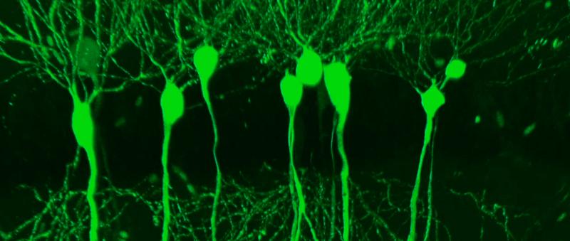 Brain Axons Dendrites Axons Dendrites