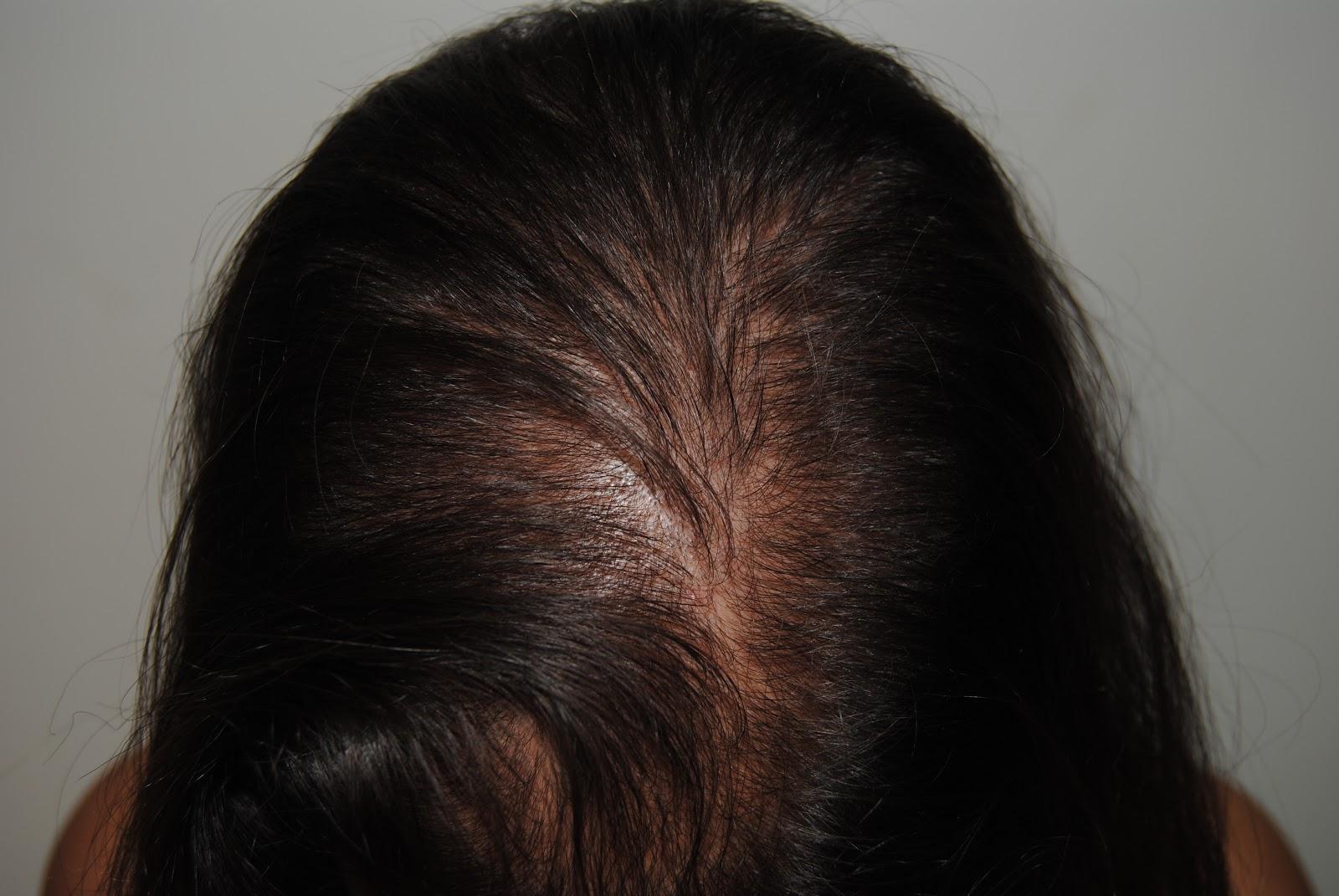 Los cabellos caen los medios para el refuerzo
