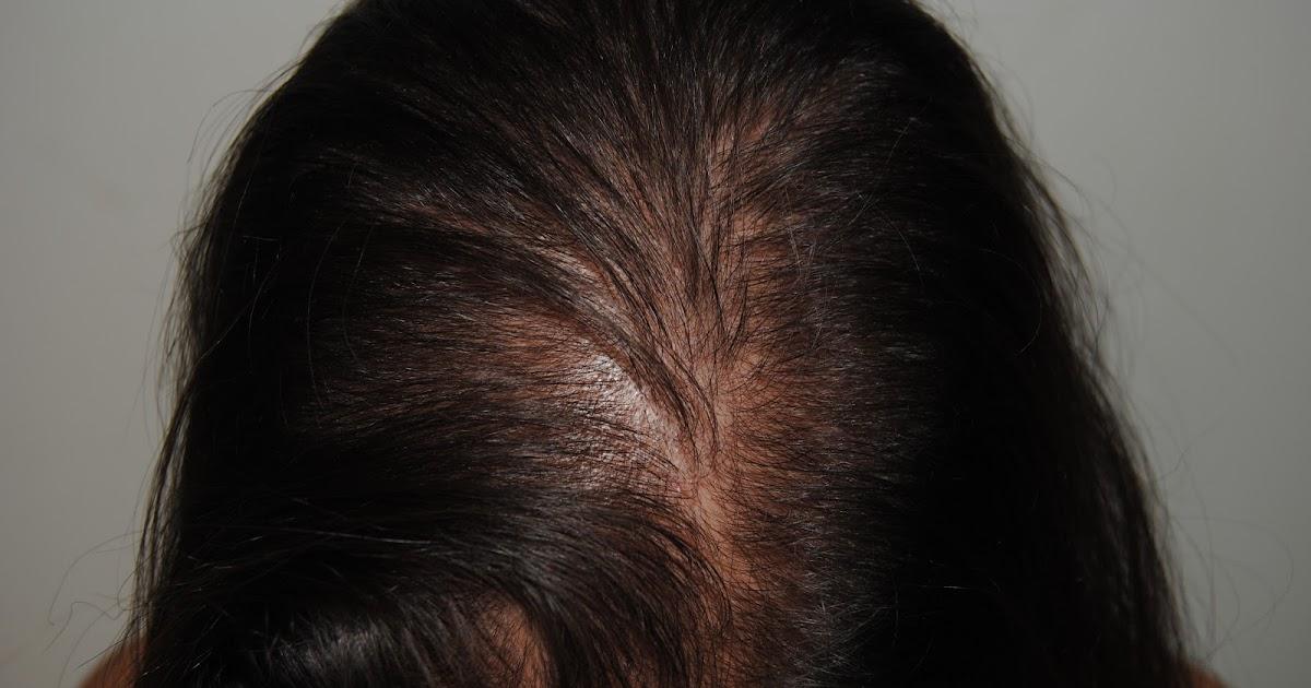 Las máscaras a la caída de los cabello con la tintura del pimiento