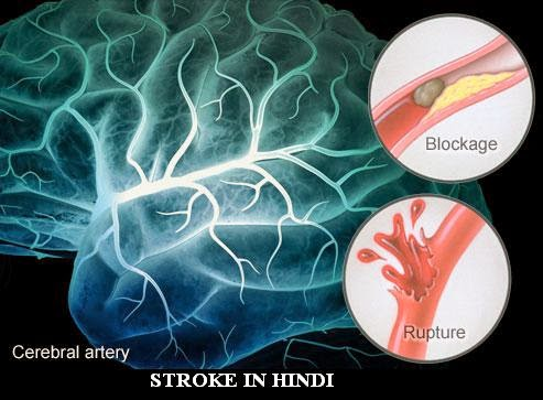 STROKE-causes-symptoms-treatment-IN-HINDI