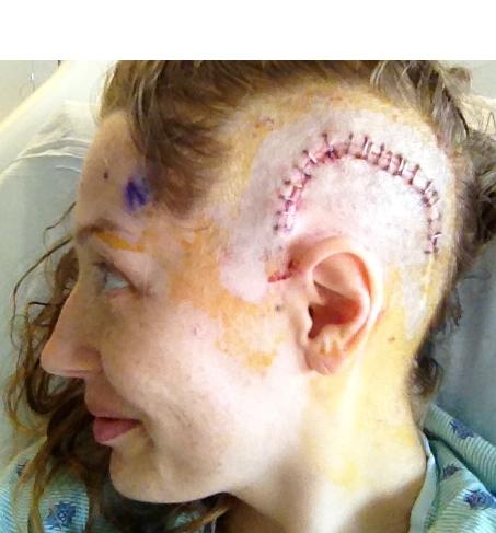 the lloyd newsletter awesome brain surgery scar 2011