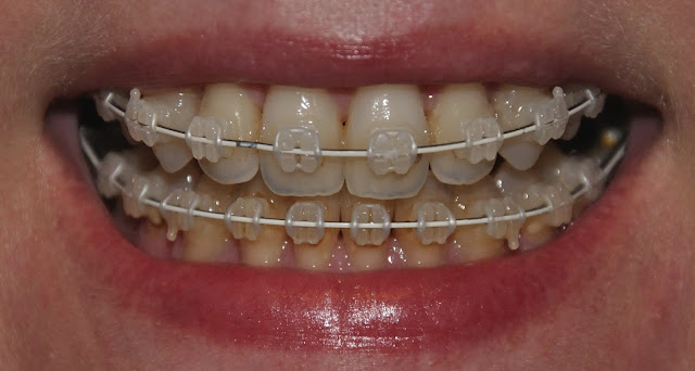 Progress after nine months of braces