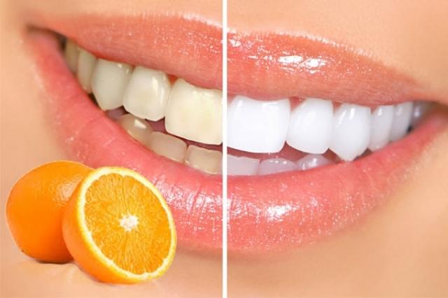 """بالفيديو  الخلطة السحرية لتبييض الأسنان في 60 ثانية فقط """"معلومة جديدة"""""""