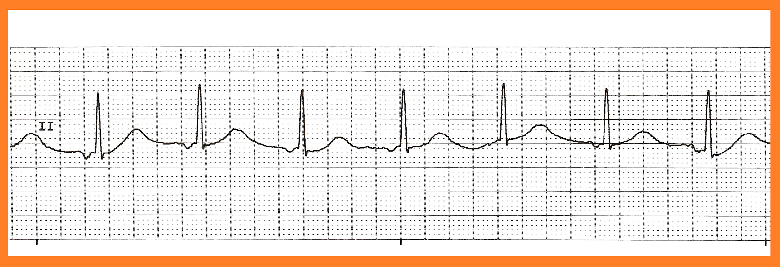 nsr 3 accelerated junctional rhythm 4 accelerated junctional rhythm 5Accelerated Junctional Rhythm