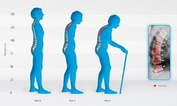 Biểu hiện của loãng xương