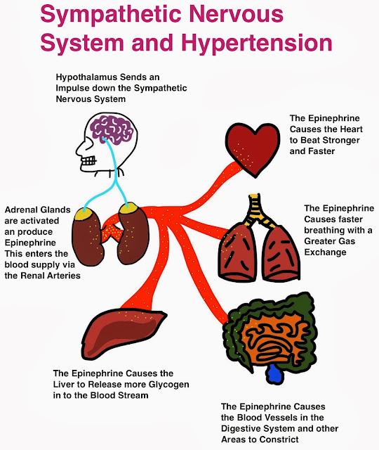 Renal Denervation RDN Treatment of Hypertension