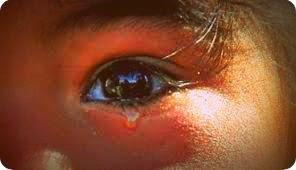 Tersangka Pemerkosa Gadis Belia di Sorong Ditangkap Polisi
