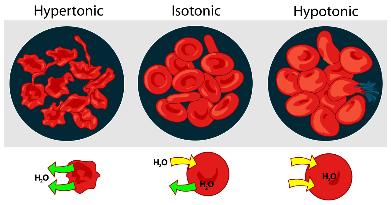 isotonic hypotonic and hypertonic This article goes over what isotonic, hypertonic, and hypotonic solutions are.