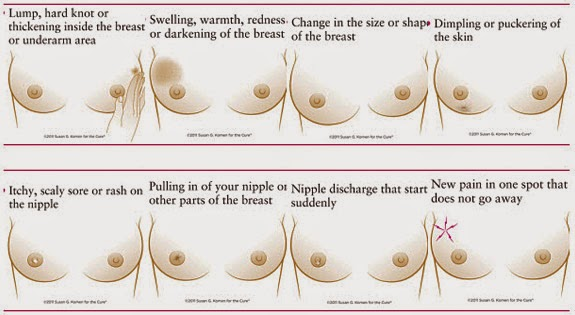 Breast cancer inverted nipple