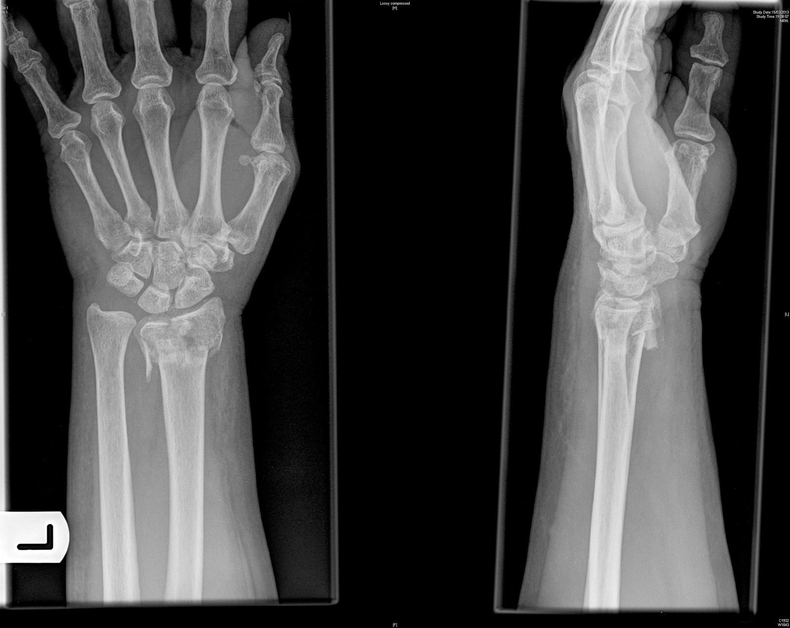 Colles' Fracture Distal Radius-4.bp.blogspot.com