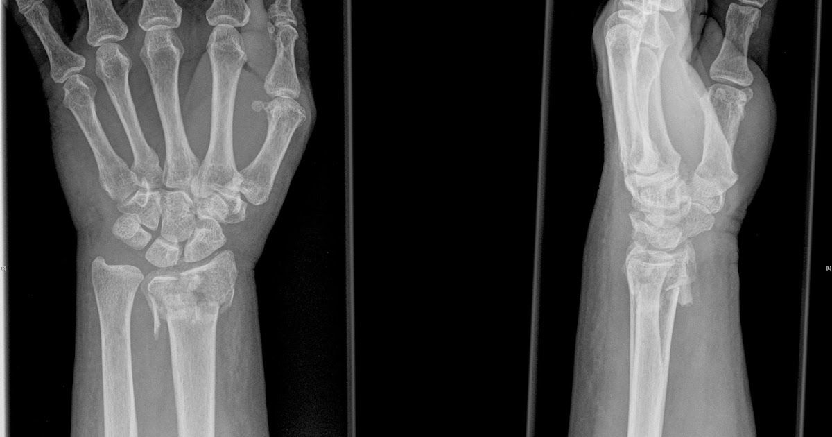 osteoporotic fracture fracture treatment