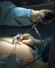http://www.laparoscopic-general-surgery.com