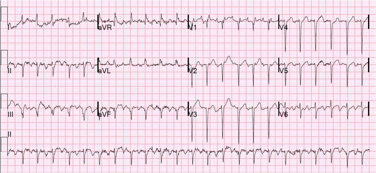 Dr Smiths ECG Blog Respiratory Failure Heart Failure And Narrow