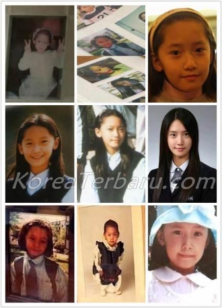 Yoona Snsd Operasi Plastik