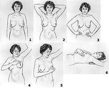 cara deteksi kanker payudara sendiri