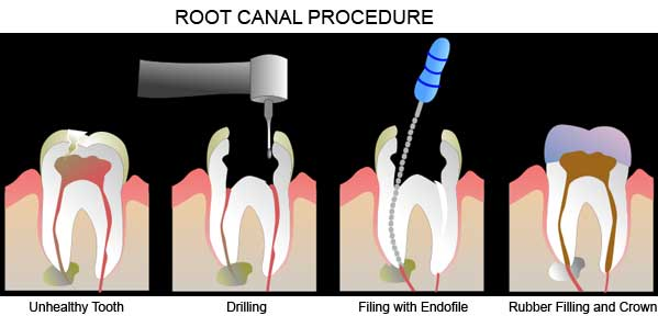 how to avoid root canal after crown
