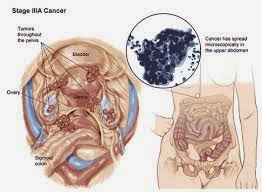 Gejala dan Tanda kanker Ovarium Pada Wanita