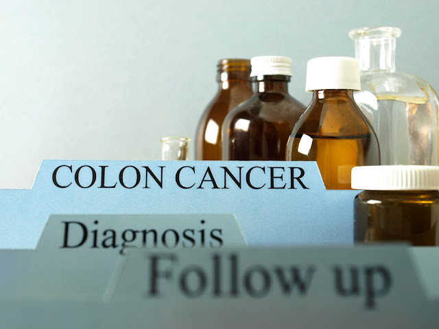 Colon cancer Diagnosis