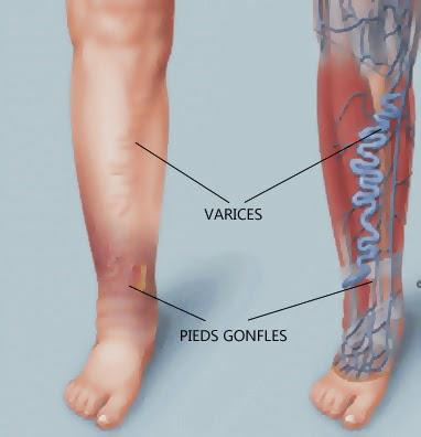gym jambes lourdes