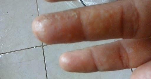 El yodo para las uñas en los pies del hongo