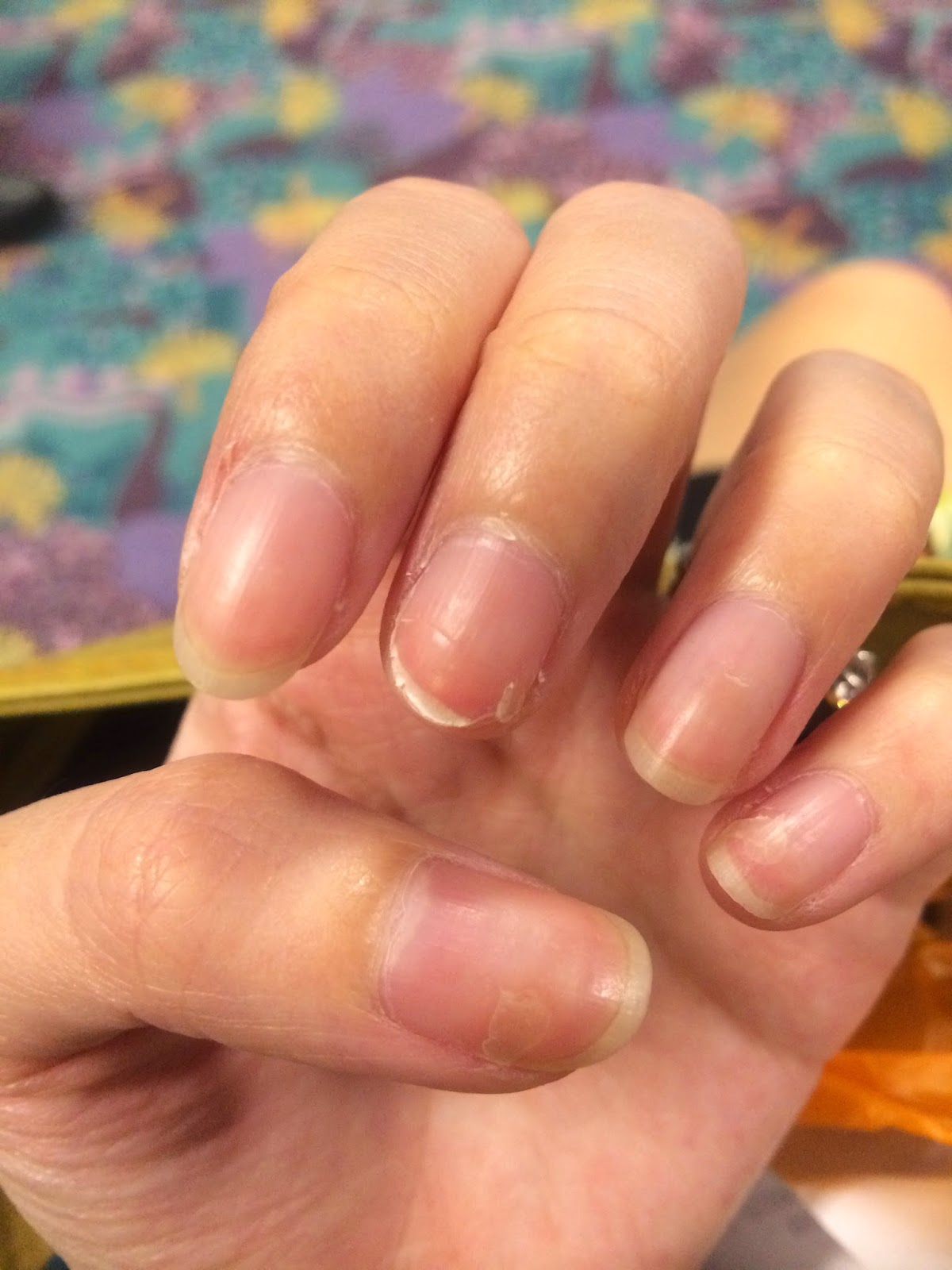 The Dettol Diaries: Peeling Fingernails after HFMD