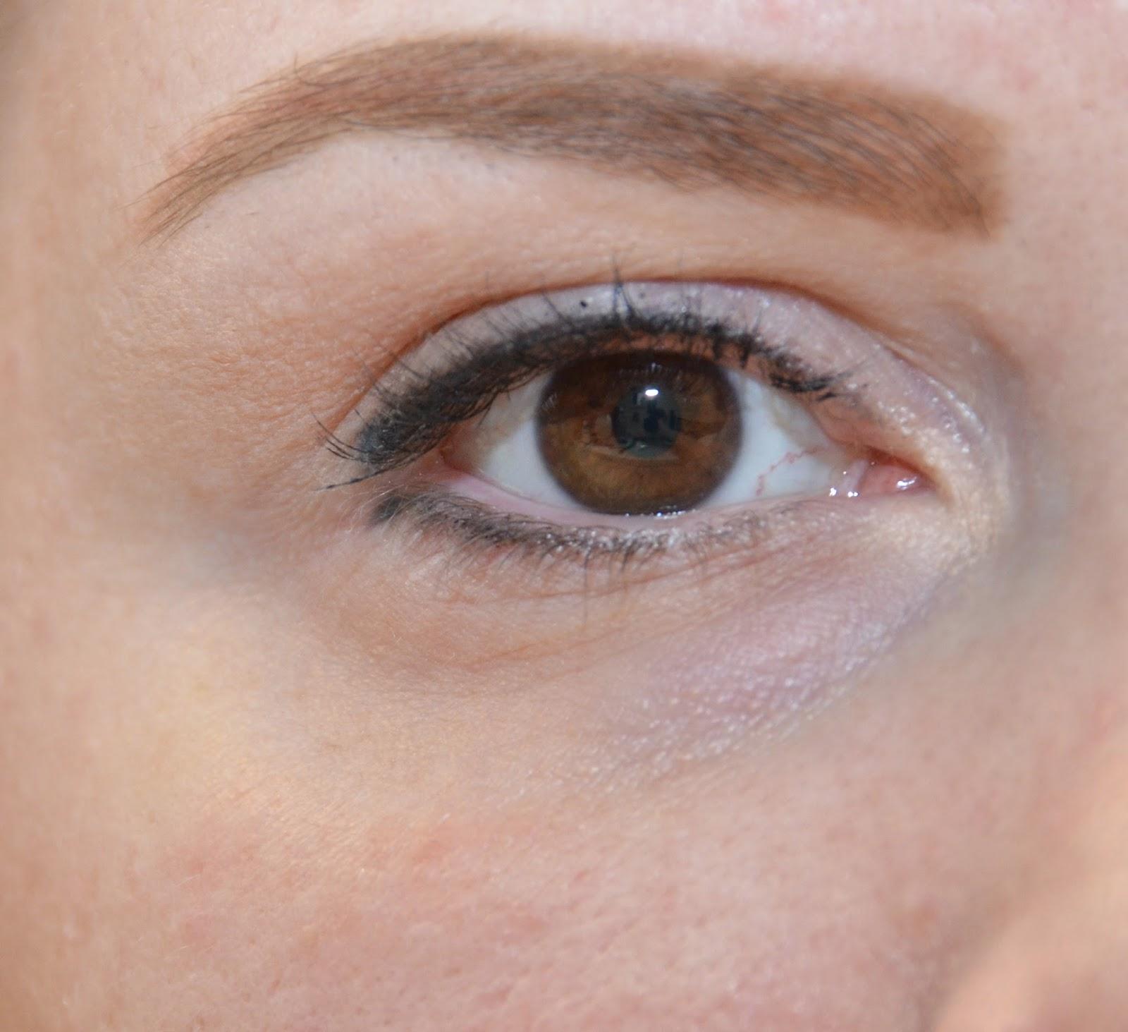 Göz Şişliğinizi Ortadan Kaldıracak Öneriler