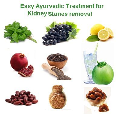Easy Ayurvedic Treatment for Kidney Stones removal