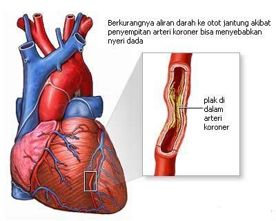 salah satu penyakit jantung