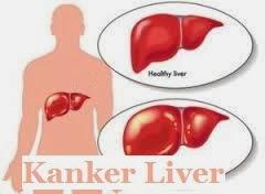 Obat Kanker Liver