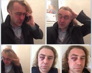 Эффект бумеранга для нациста Мирошниченко (видео)