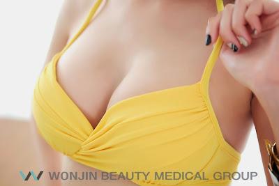 sebelum dan sesudah operasi payudara wonjin