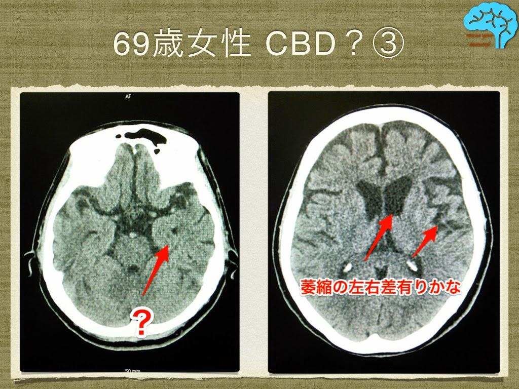 皮質基底核変性症(CBD) 左右差のある脳萎縮
