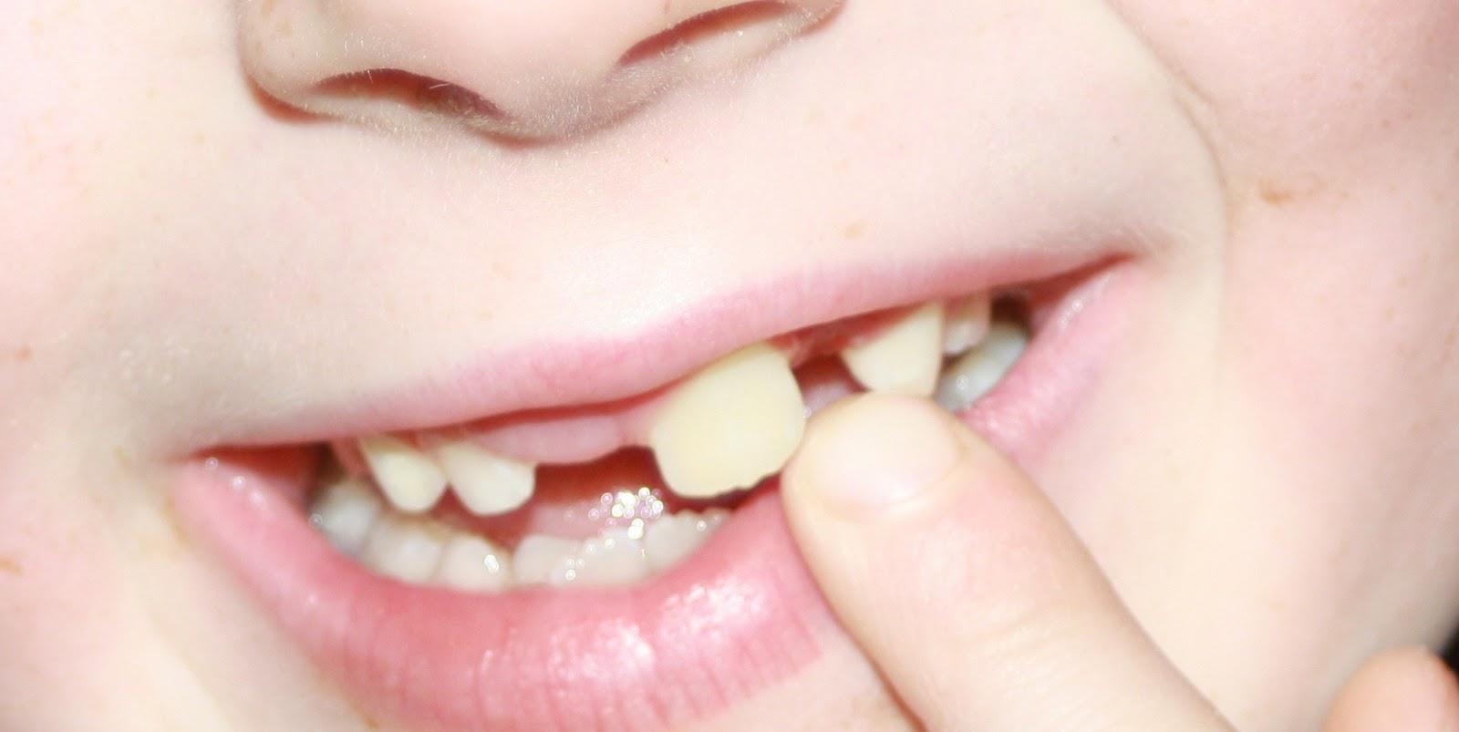 Схема прорезывания зубиков, роста схема прорезывания