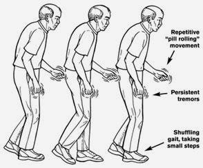 Cara Cepat Menyembuhkan Penyakit Parkinson