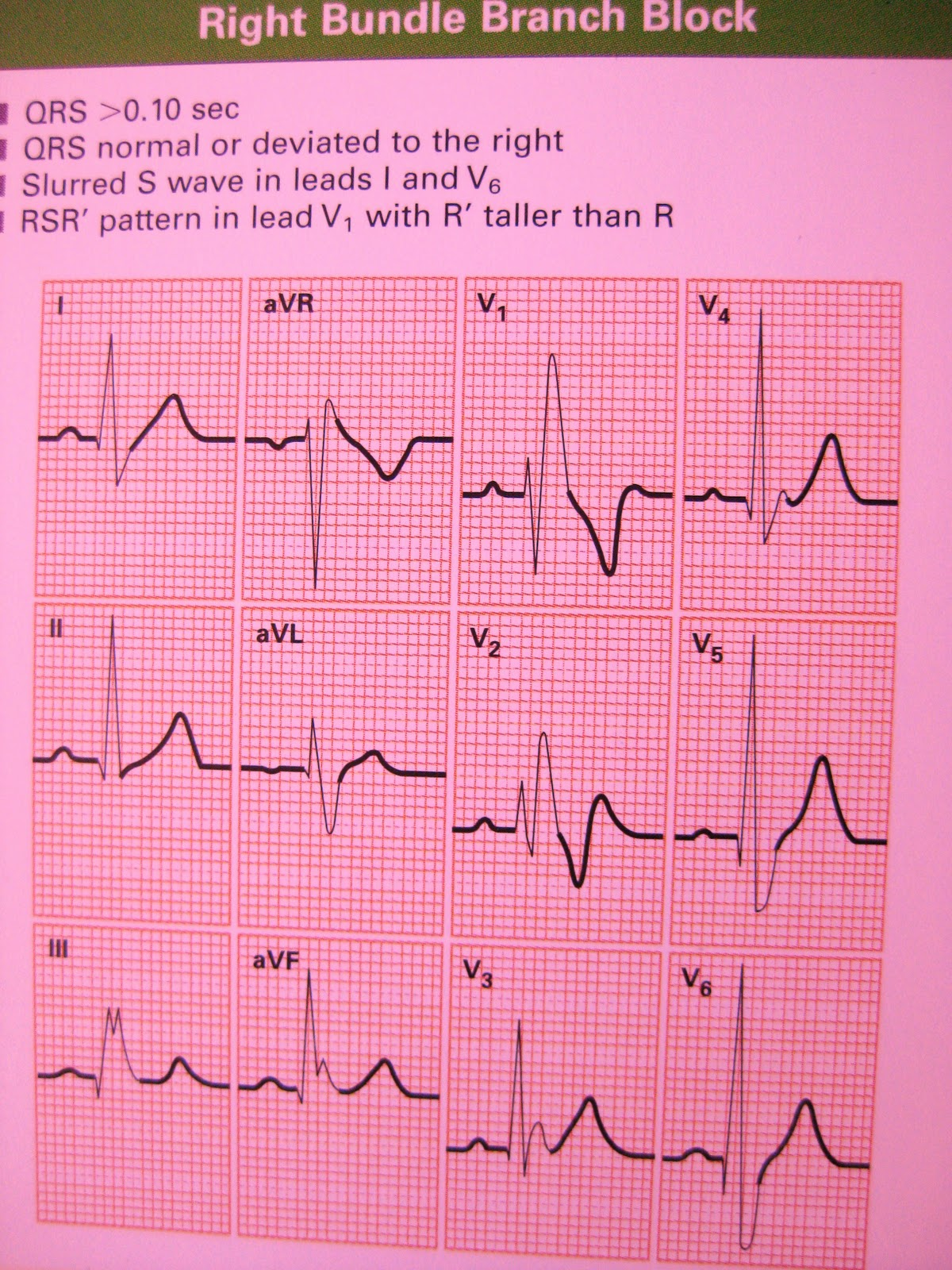 12 lead ecg images IPhone Does Not Show Up In My Computer - Trouble Fixers