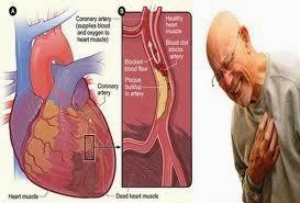 Obat Tradisional Jantung Koroner