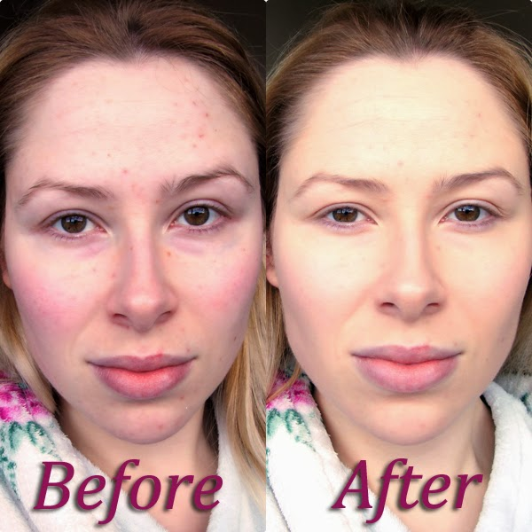 Before & After La Roche-Posay Toleriane Teint Correcteur De Teint Fluid SPF 25 Shade 10 Ivory Before & After
