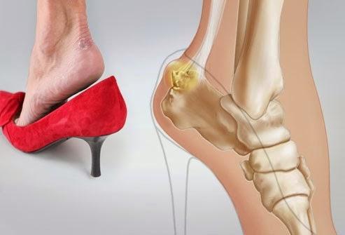 Bahaya Menggunakan High Heels