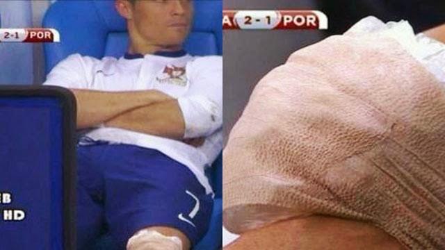ركبة رونالدو تقلق جماهير ريال مدريد
