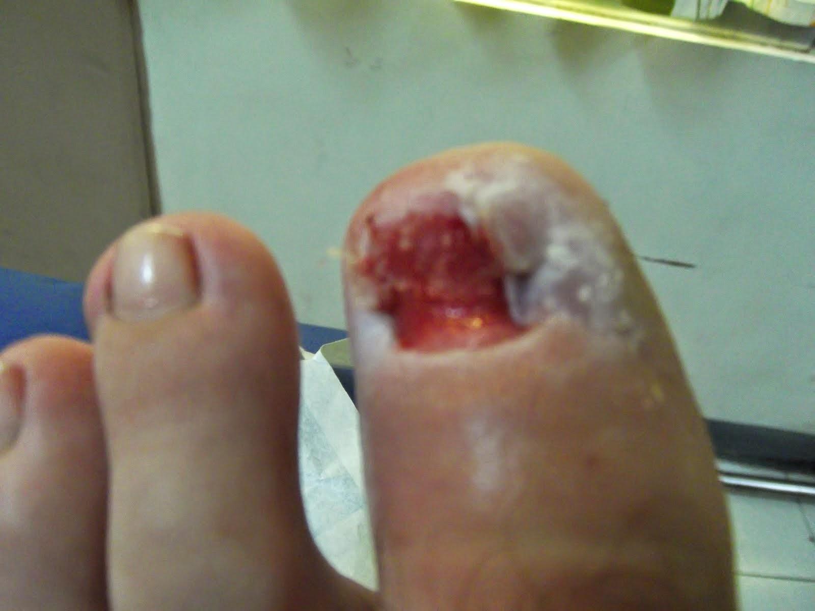 mac new toe